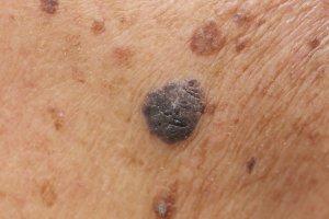 티아지드 계열 혈압약 오래 복용하면 '피부암' 위험 높아져